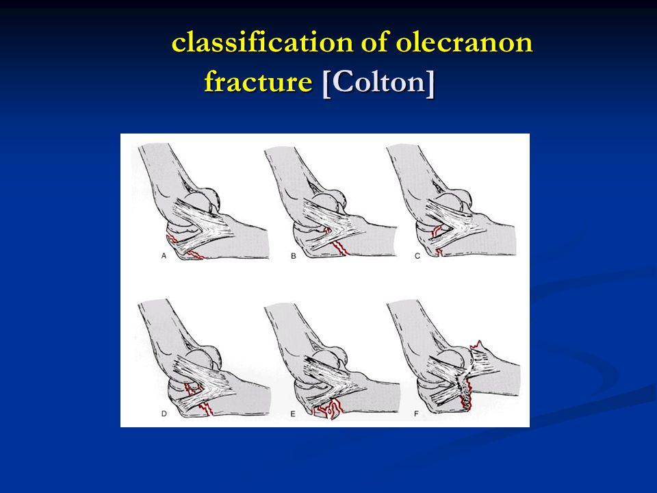 classification of olecranon fracture [Colton]